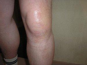 Почему опухло колено в области коленной чашечки и в чм причина