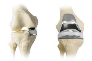 Если болят колени что делать в домашних условиях