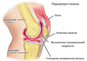 Что делать если скрипят колени при приседании и вставании чем лечить