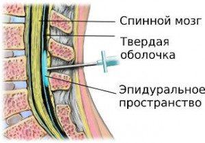 Операция на мениске коленного сустава: реабилитация