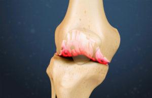 Болит бедро и колено в покое