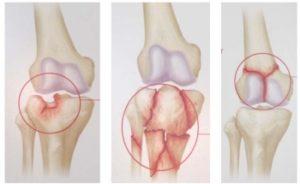 Смещение чашечки коленного сустава