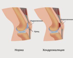 Начали болеть колени в 33 года thumbnail
