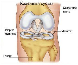 Изображение - Лапароскопия коленного сустава 2ef31a5e243b5d34468ca5add664a4a4-300x248
