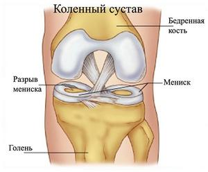 Коленного сустава лапароскопия диагностика коленного сустава киев цена