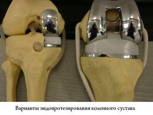 Протезы для коленных суставов импортные чистка суставов корнем подсолнуха отзывы