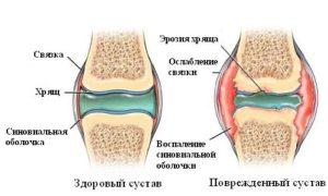 Болит колено при сгибании и разгибании. Лечение в домашних условиях. Народные средства, мази, таблетки. К какому врачу обратиться