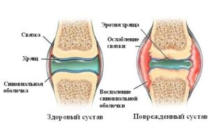 Болят колени после разгибаний ног thumbnail