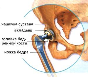 Почему может болеть тазобедренный сустав после операции thumbnail