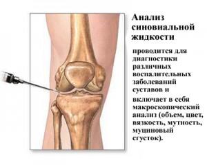 Как возобновить суставную жидкость болят суставы ног как лечить народными средствами