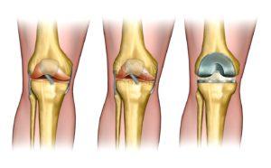 Артропластика коленного сустава — цены  от 6950 руб. в Москве, 16 адресов