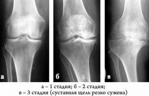 Снимок коленного сустава в двух проекциях