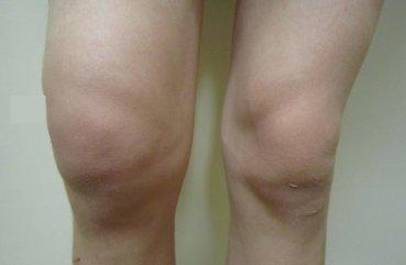 Рак коленного сустава симптомы фото