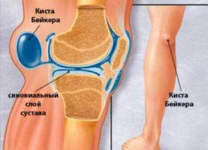 Как называется задняя часть коленного сустава