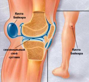 Боль в ноге от паха до колена