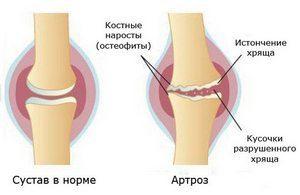 Жидкий протез коленного сустава отзывы чем лечить суставы