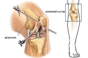 Скопление жидкости в коленном суставе: лечение воспаления мениска
