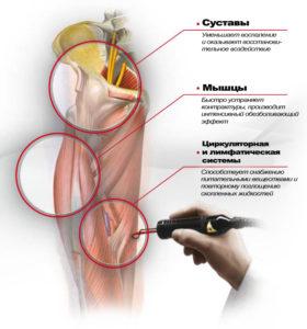 Магнито лазерная терапия коленного сустава