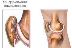Резкая боль при надавливании на колено