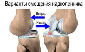 Признаки беременности болит колено thumbnail