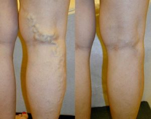 Жжение в ногах ниже колена причины к какому врачу обратиться