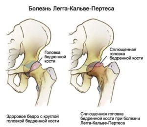 Что убрать из рациона если болит тазобедренный сустав