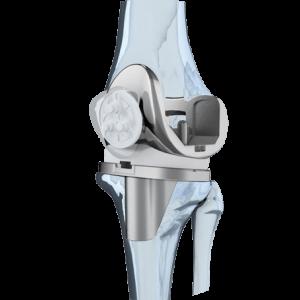 Американские эндопротезы коленного сустава - Лечение Суставов