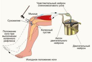 Гиперрефлексия — причины, симптомы и лечение