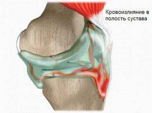 Гемангиома сустава голеностопный сустав лечение ревматологический артрит протез