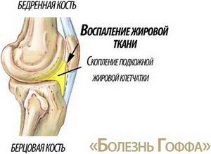 Как и чем снять воспаление в коленном суставе народными средствами