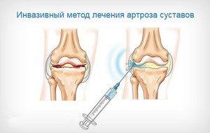 жидкое протезирование коленного сустава отзывы