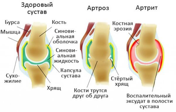 После долгого сидения за рулём болит колено транзиторная форма тазобедренных суставов