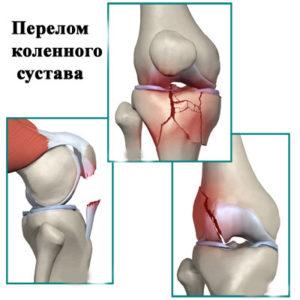 Причины отёков ног