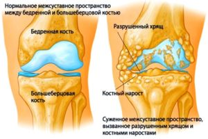 Не сгибается нога в колене после ушиба