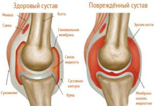Щелчки в колене при ходьбе