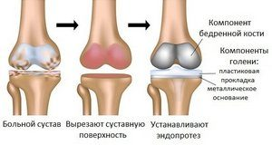 Aesculap эндопротез коленного сустава