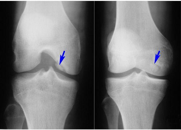 Рентген коленного сустава при гонартрозе боль в суставе колена лечение народными средствами