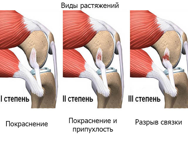 Внезапная резкая боль в суставе колена дегенеративное изменение обоих коленных суставов