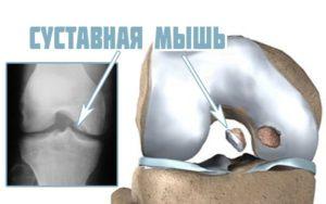 Острая боль в колене - отчего она возникает, внезапная и пульсирующая боль в коленном суставе