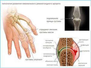 Изображение - Почему у ребенка щелкают суставы на ногах uvenil2-300x227