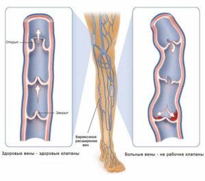 Боли в колене и бедре в состоянии покоя и ходьбе