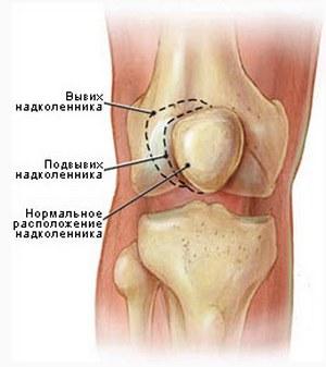 Почему болит колено после травмы thumbnail