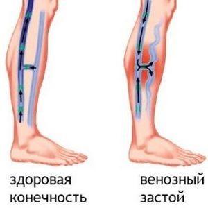 Болит колено с внутренней стороны особенно ночью