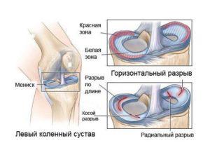 Что болит под коленной чашечкой левой ноги