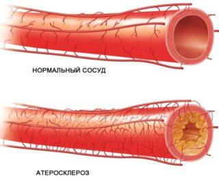 Хронический остеомиелит бедренной кости