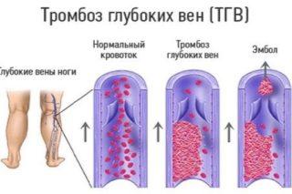 Изображение - Боль в мышцах тазобедренного сустава лечение 03-01_statia_27_1-320x213