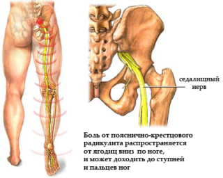 Сильно болит нога в бедре при беременности