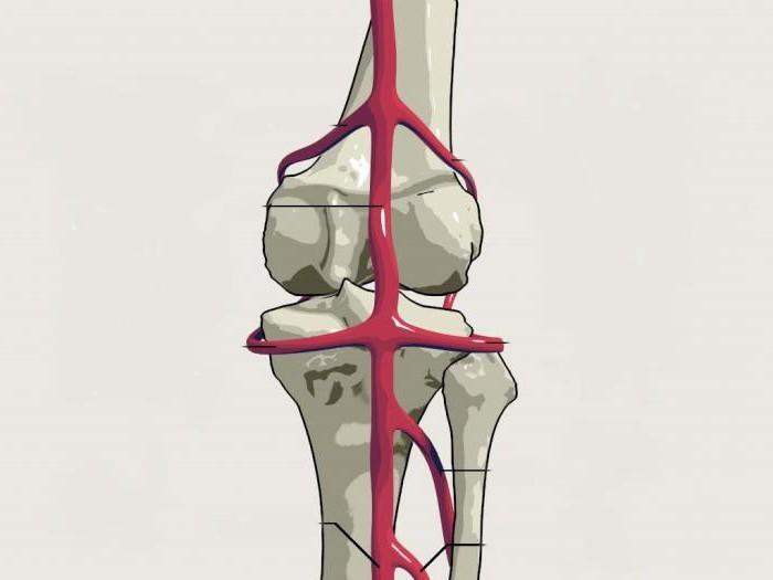 Открытый перелом бедра с повреждением бедренной артерии