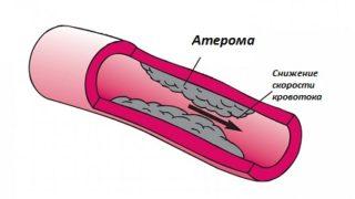 Атерома на ноге