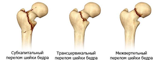 Болит нога от тазобедренного сустава до стопы